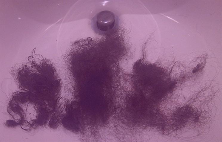 Olivias-Hair-Loss-in-Sink